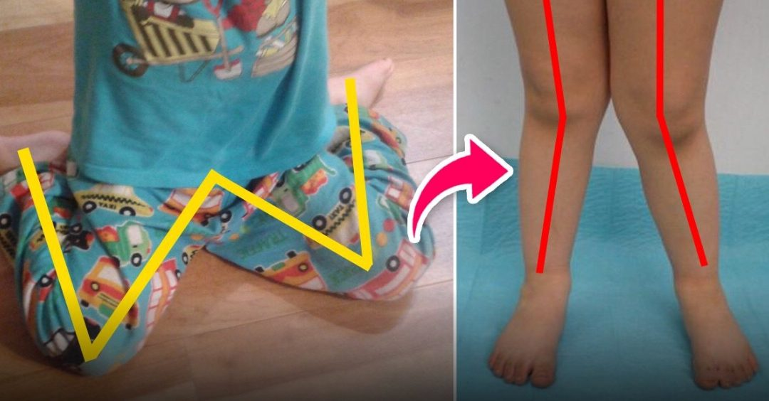 """W"" sitting position can be bad for children. Try to correct it before it's too late"